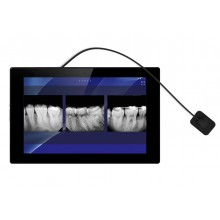 Digital X-Ray Sensor Portable Bundle